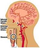 Images of Stroke Treatment