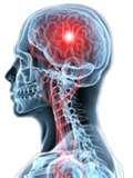 Neuro Physiotherapy Exercises